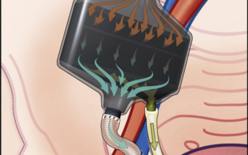 Portable and Implantable Artificial Kidneys: AWAK, WAK, and IAK, oh my!